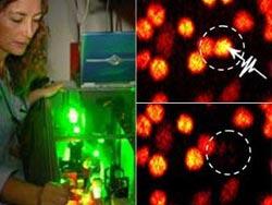 Dao laser diệt từng tế bào ung thư
