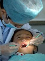 Trám răng không cần khoan