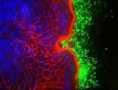 Tế bào quyên sinh vì lợi ích chung