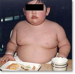 Bác sĩ không chuẩn đoán chính xác tình trạng thừa cân ở trẻ