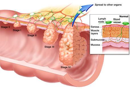 Chứng viêm góp phần gây ung thư ruột kết