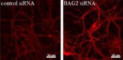 Tiến triển trong việc nghiên cứu bệnh Alzheimer