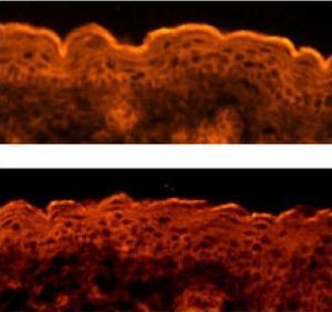 Phát hiện gen điều khiển sự hình thành da