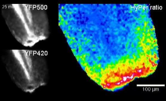 Hydro Peroxide dẫn đường cho hệ miễn dịch