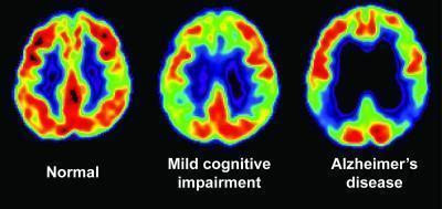 Kiểm tra trí nhớ và PET scan giúp phát hiện những dấu hiệu sớm của bệnh mất trí