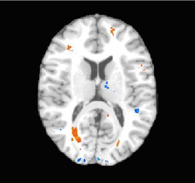 Mối liên hệ giữa chấn động và tổn thương mô não