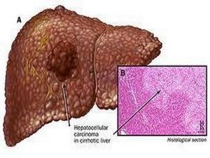 Liên hệ giữa bệnh viêm gan B và u hạch bạch huyết