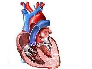 Phát hiện nhiều loại biến thể gen gây bệnh tim