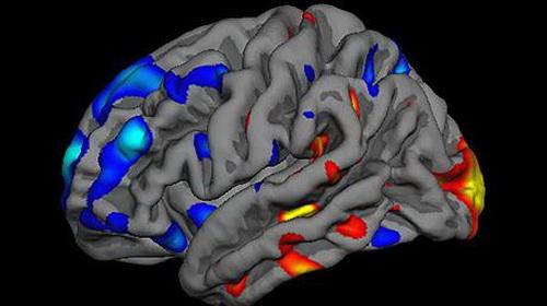 Máy quét bộ não phát hiện tự kỷ trong 15 phút