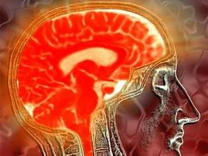 Phương pháp mới xử lý u não không cần mở hộp sọ