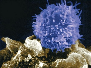 Triển vọng mới về phát triển vắcxin chống ung thư
