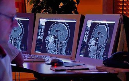 Máy tính đọc suy nghĩ con người