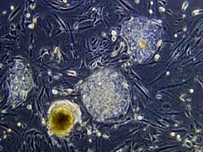Phương pháp mới tạo tế bào gốc của người