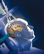 Đốt cháy u não bằng laser