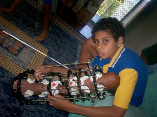 14 tuổi, tự kéo dài 29cm xương chân