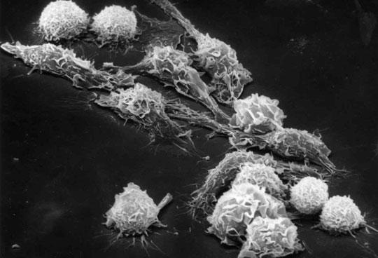 Virus EBV là nguyên nhân gây ra các bệnh ung thư?