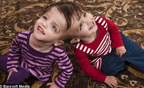 Cặp sinh đôi dính đầu có thể nhìn qua mắt của nhau
