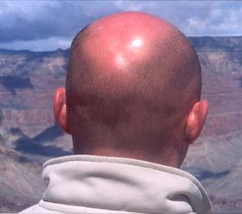 Phát hiện căn nguyên hói đầu ở nam giới