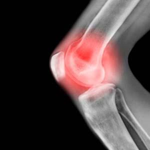 Allium, hoạt chất từ tỏi giúp điều trị viêm xương khớp hông