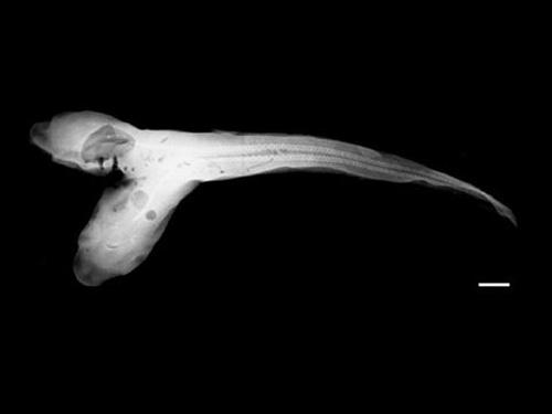 Bào thai cá mập hai đầu
