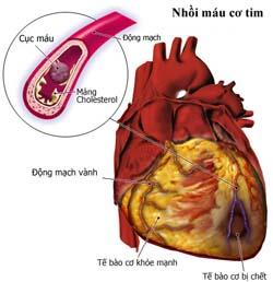 Phát hiện thêm hai gen liên quan đến bệnh tim