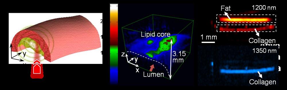 Thiết bị Photoacoustic giúp phát hiện sớm ung thư da