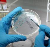 Các vi khuẩn Taimyr có khả năng sống trên sao Hỏa