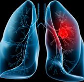 Cuba bào chế thành công vắcxin phòng ung thư phổi