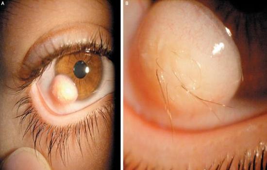 U bì kết giác mạc có thể gây mọc lông trong mắt.