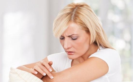 Bệnh chàm khiến da khô, ngứa và sưng tấy