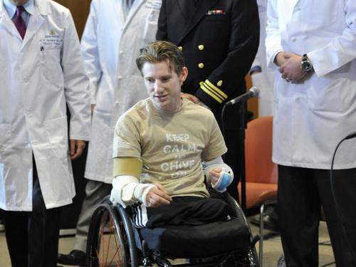 Brendan Marrocco nói anh như được hồi sinh sau khi ghép tay.