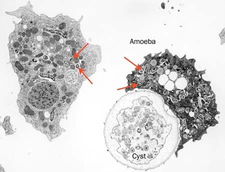 Nguy cơ lây nhiễm Amip tăng gấp đôi qua nguồn nước