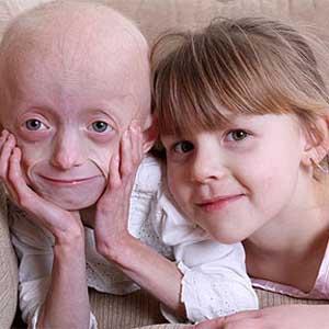 Bé 8 tuổi mắc bệnh lạ, mặt giống bà già 80 tuổi