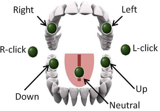 Lưỡi điều khiển xe lăn