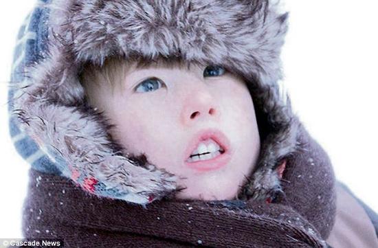 Hội chứng hiếm gặp Moebius Syndrome khiến Isaac  Hughes không thể cười như những đứa trẻ khác.