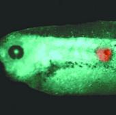 Triển vọng phát hiện ung thư sớm nhờ các tín hiệu điện sinh học