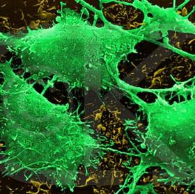 Phát minh mới về vắcxin tiêu diệt tế bào ung thư