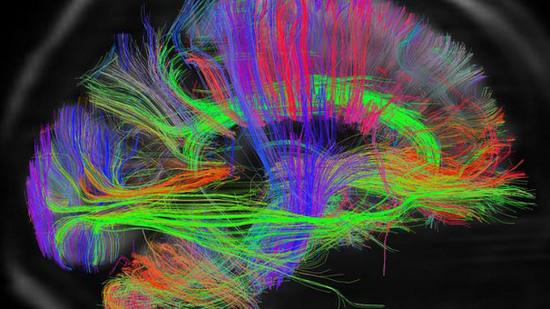 Một hình ảnh 3D trong dự án bản đồ não người