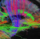 Công bố một phần bản đồ não người