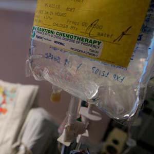 Liệu pháp thay thế hóa trị trong chữa bệnh ung thư