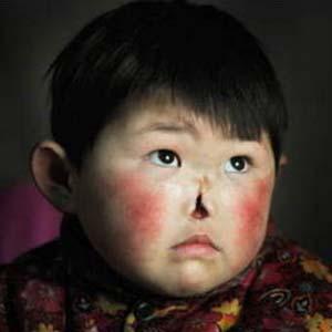 Mắc bệnh lạ, bé gái tự nhiên mất mũi