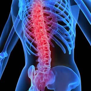 Phát hiện gen đột biến gây tình trạng rối loạn xương