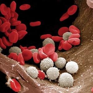 Ung thư bạch cầu là do gene