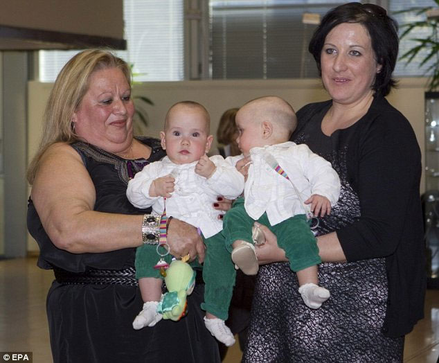Cặp song sinh Nuria và Marta Feliu sau khi phẫu thuật
