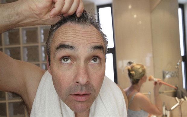 Các nhà khoa học đã xác định được protein gây rụng tóc