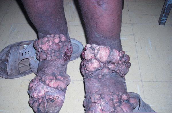 Tìm ra biến thể di truyền tăng nhiễm bệnh chân voi