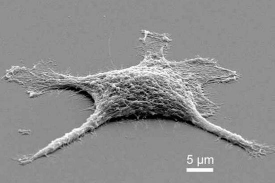 Cận cảnh tế bào xác sống