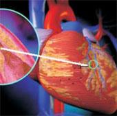 Con người đã mắc bệnh tim từ cách đây 4.000 năm