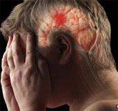 """Giải mã """"lá chắn đột quỵ"""" của não"""
