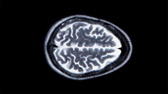Chụp MRI não người, phân tích dữ liệu có thể tái tạo lại những kỷ niệm của bệnh nhân